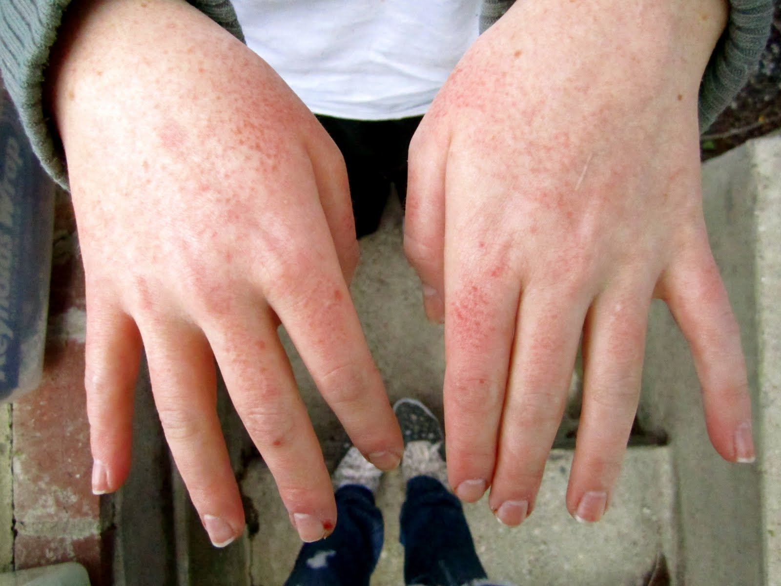 What is Contact Dermatitis? Chemical Skin Rash – Health Talk