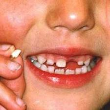 5 Makanan Yang Bisa Bikin Gigi Rusak