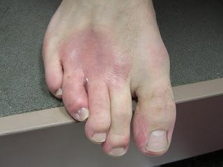 eczema causes