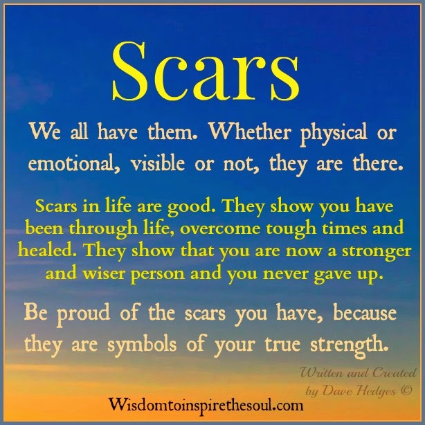 Whether We All Have Them Scars