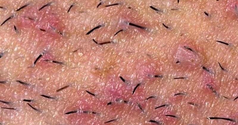 herpes genitale aiuto : Forum Malattie sessualmente trasmissibili (HIV, herpes…)
