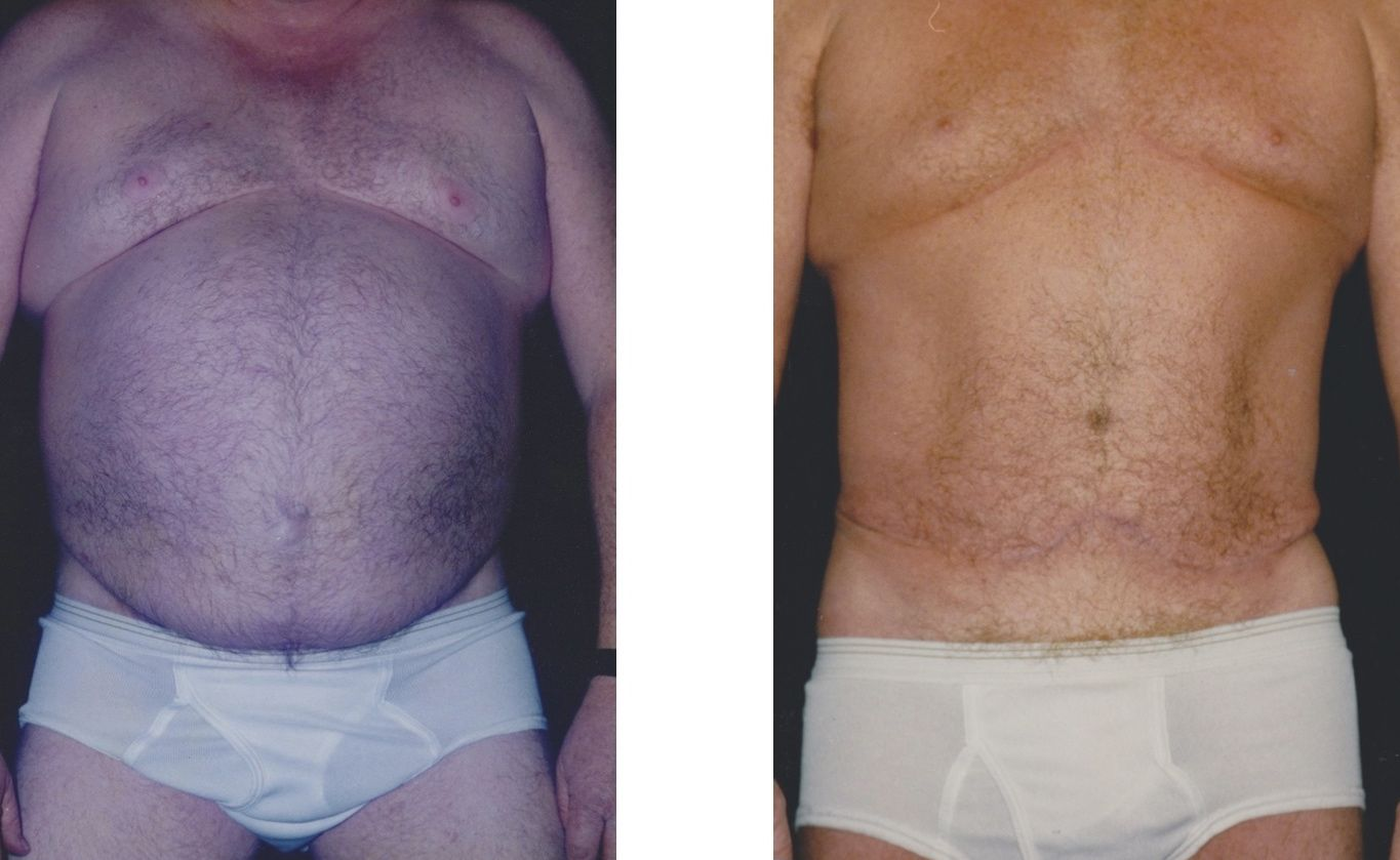 Jacksonville Plastic Surgery And Cosmetic Surgery Breast