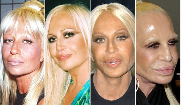 Donatella Versace Bad Plastic Surgery | Celebrity Bad ...
