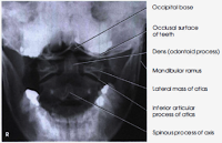 cervical spine open mouth radiograph