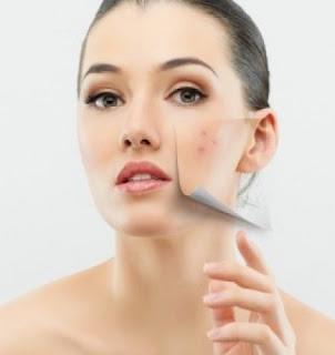 cremas para blanquear la piel