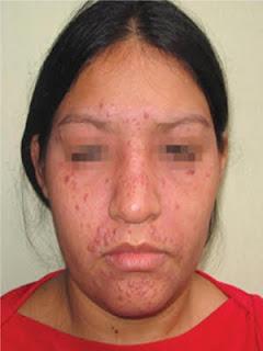 Lupus miliar diseminado facial