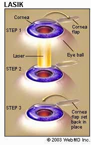 an introduction to the lasik laser eye surgery Introduction to lasik  an instrument called a microkeratome is used in lasik eye surgery to create a  the excimer laser uses a cool ultraviolet light beam.