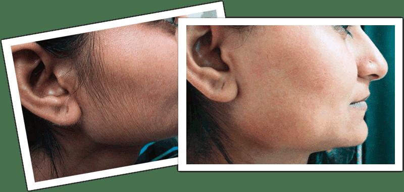 hair in facial women Reduce