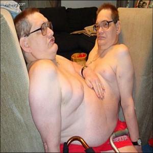 بالصور: توأمان ملتصقان يعيشان بجسد واحد منذ 58 عاما !!