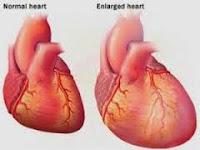 Obat Pembengkakan Jantung
