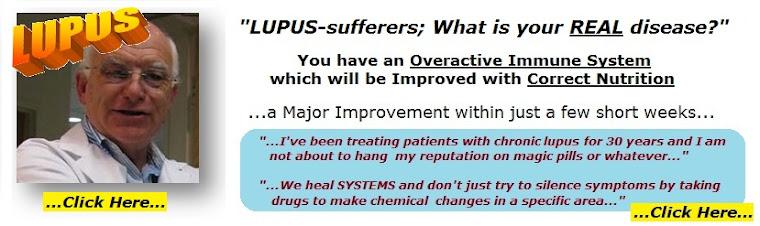 Symptoms of lupus disease, treatment