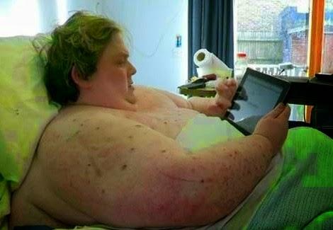 Εικόνες που προκαλούν ΣΟΚ! Δείτε πως είναι οι ακτινογραφίες ενός ανθρώπου 445 κιλών [photos + video]