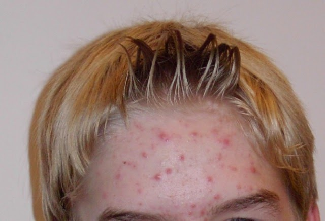 Acne, Treatment for Acne, Home remedies for acne