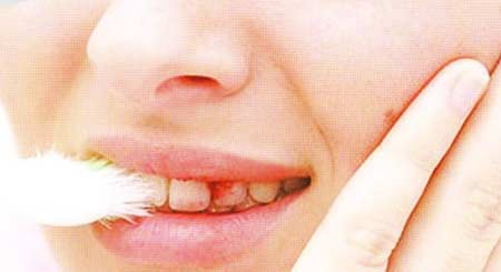 Cara Mencegah Penyakit Gusi Berdarah