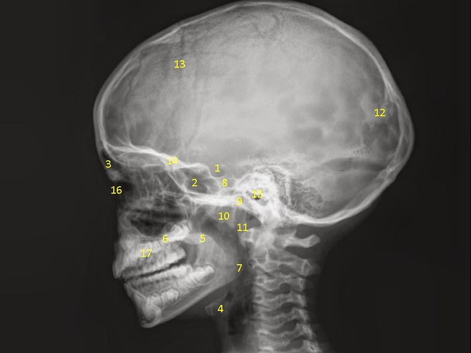 E-Anatomía Odontológica: GRUPO A2 RX LATERAL DE CRANEO