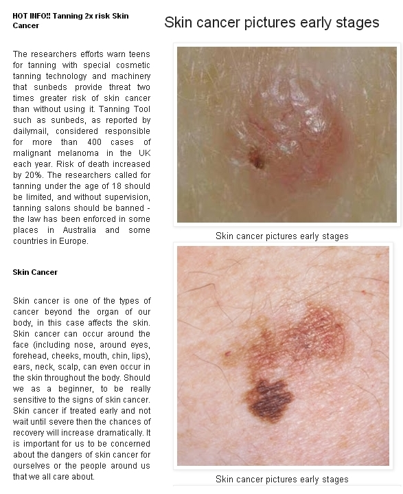 Skin Cancer Advices Early Pictures Of Skin Cancer