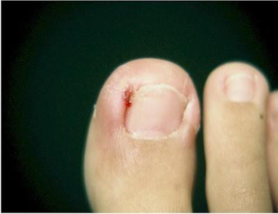 http://3.bp.blogspot.com/-434pW-yM-dU/TryBzmJOMLI/AAAAAAAAGHM/kBDNbkzj7FQ/s1600/ingrown_nail_surgery1a.jpg
