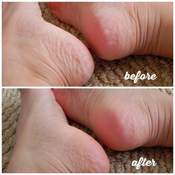 how to get rid of dry cracked soles, callus, how to get sandal-ready feet