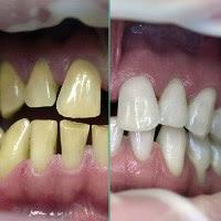 Tips Aman Memutihkan Gigi