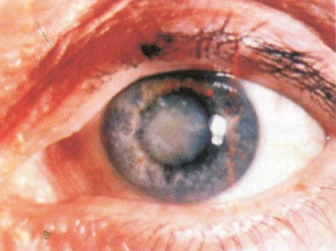 Treating Cataracts Diseases