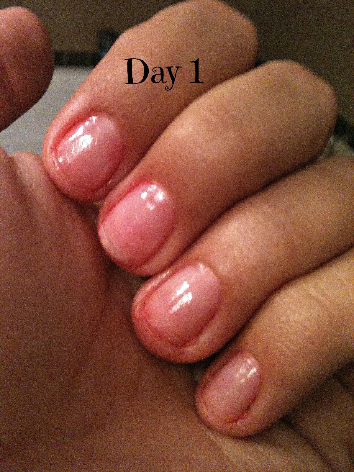 Nails, Nails, Nails!: Nail-Aid Ultra Fast Growth