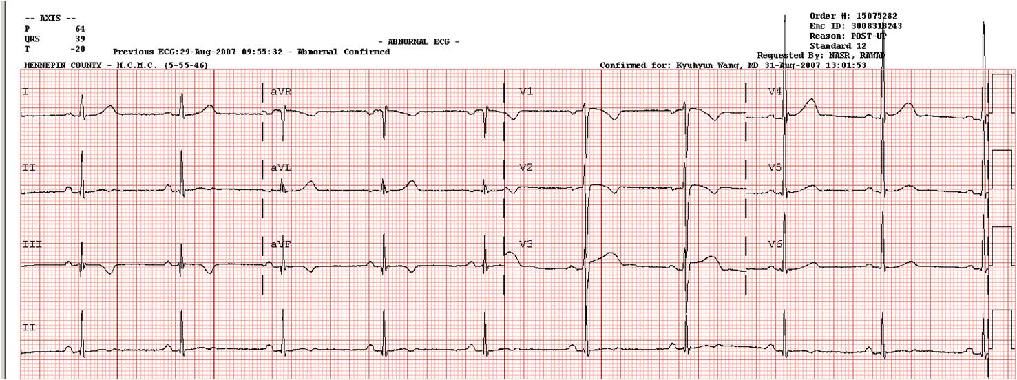 Abnormal Ecg Reading