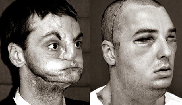 Penampilan Baru Pasien Transplantasi Wajah