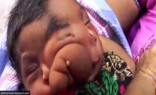 Video Lahir Dengan Belalai Bayi di India Dianggap Jelmaan Dewa Ganesha