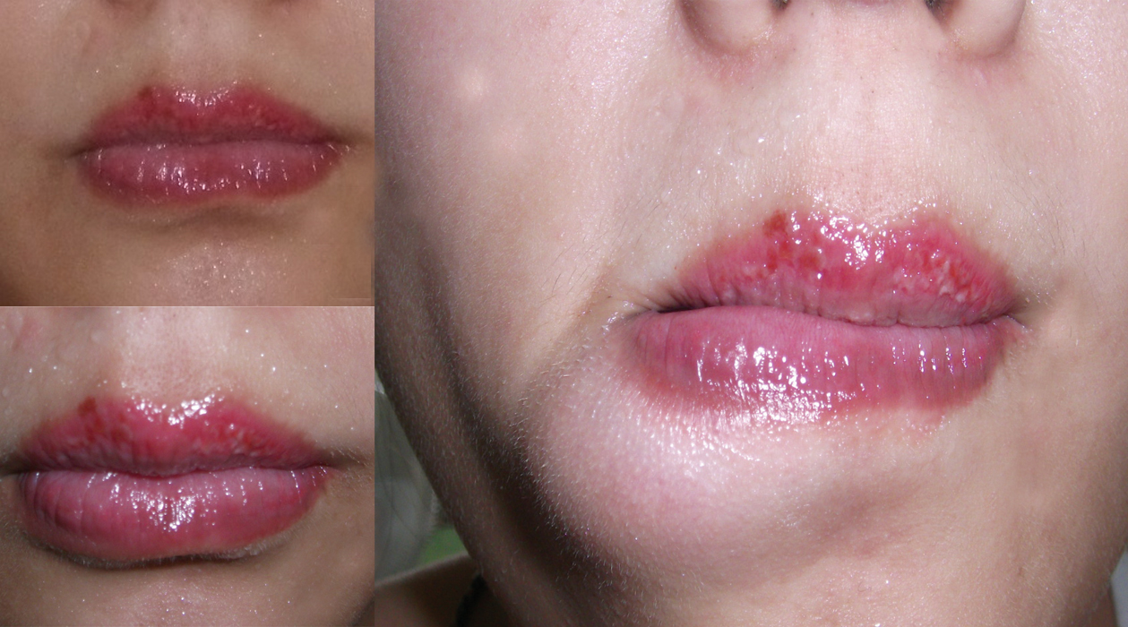 Lip tattoo: photo before and after, reviews, techniques, healing, effects 29