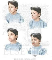 A Touretters Blog Transient Tic Disorder Also Known As Benign Tic Disorder Of Childhood