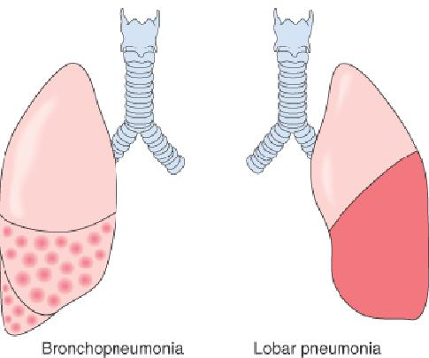 ... referred to as bronchial pneumonia or lobular pneumonia inflammation