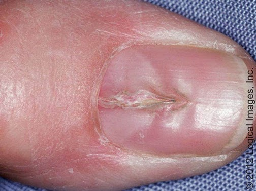 nail dystrophy
