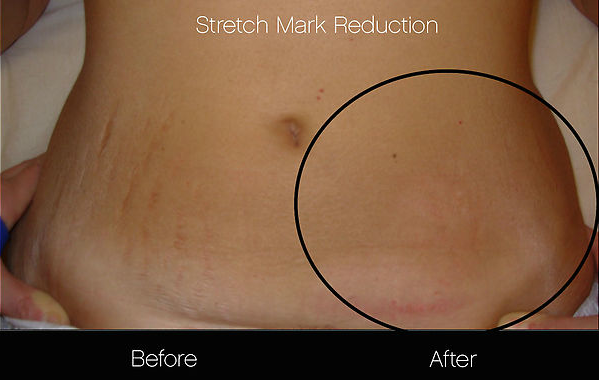 Before and after of stretch mark reduction treatments