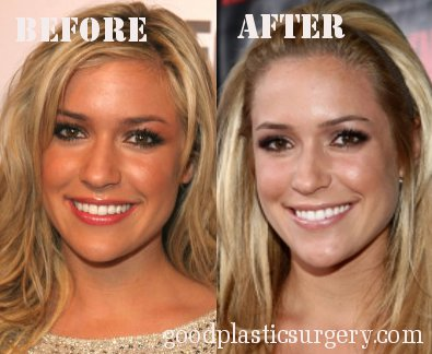 Lady Gaga Plastic Surgery Before After