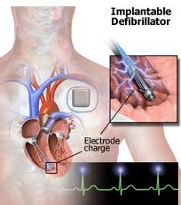 who needs implantable cardioverter-defibrillator
