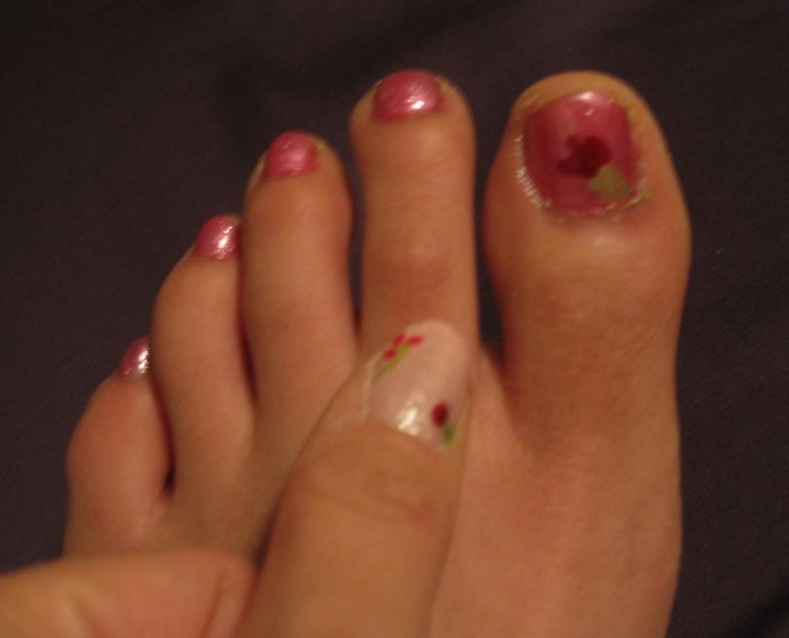 eggshell nail disorder