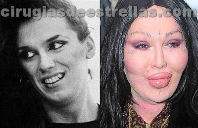 pete burns antes y despues