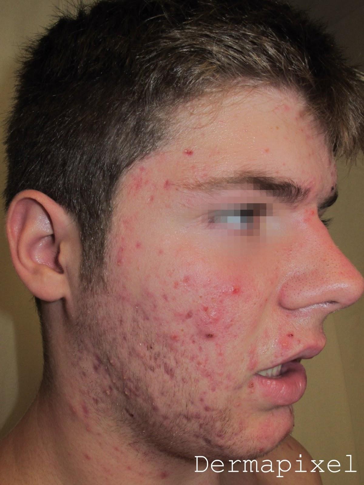 Como quitar la mancha de pigmento sobre el ojo