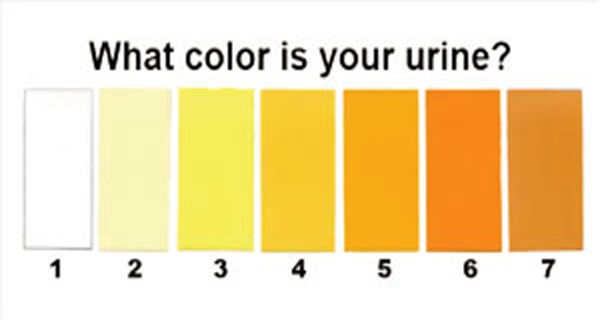 7 Urine Colors That Can Tell You Important Things Tips Webs