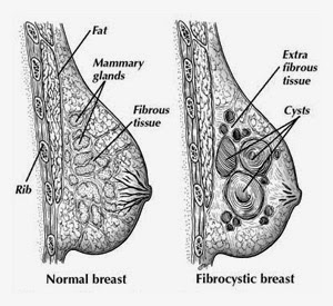 getting healthy with np sam: fibrocystic breast changes, Skeleton