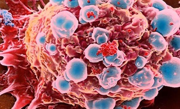 Minuman & Makanan Yang Dapat Menyebabkan Kanker