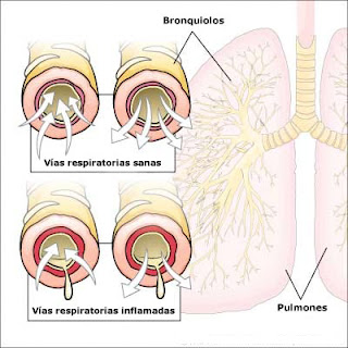 bronquiolitis