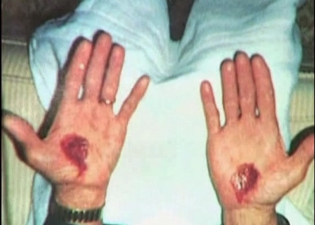Ryan from Chicago Displays His Painful Stigmata with Blood Oozing ...