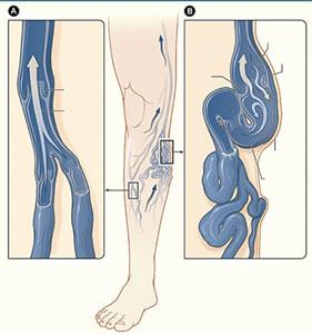 Simpul Mengkarung - Kekejangan Otot