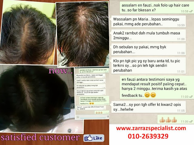 shampoo rambut gugur, rawatan rambut gugur