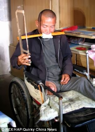 Jeez !! Man Hacks Off Infected Leg With A Saw Because He Could Not Afford Hospital Bills