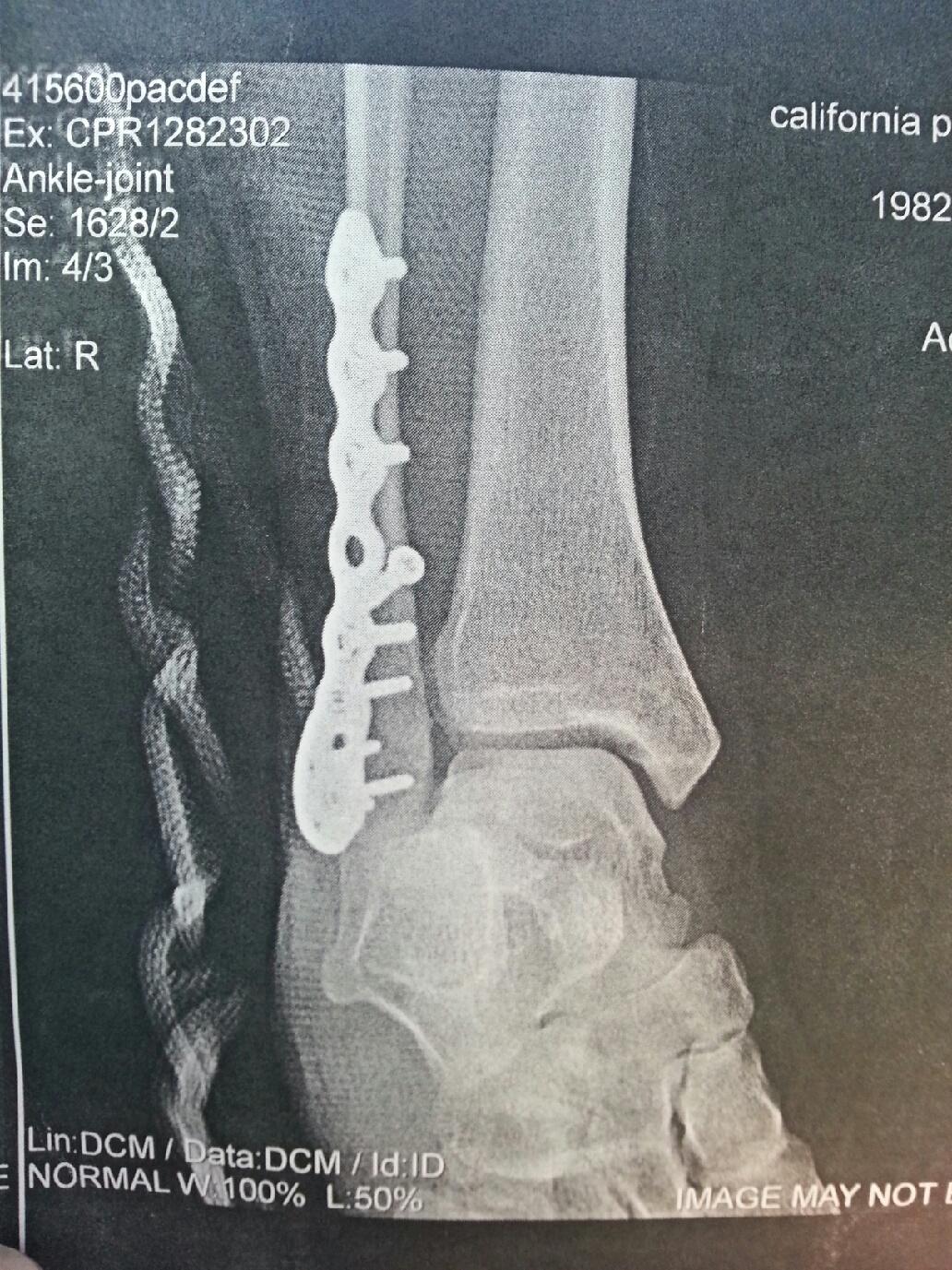 my broken ankle november 2012