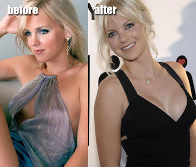 Anna Faris Plastic Surgery Before and After Nose Job, Facelift and