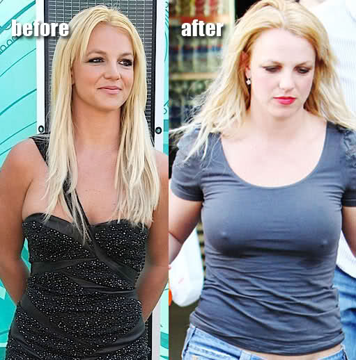 Britney Spears Before And After Breast Implants