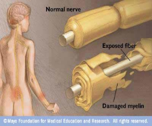 WORLD INFO: Guillain Barre Syndrome disease